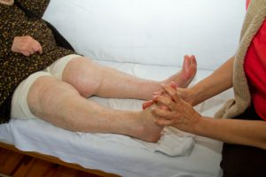 Physical Therapy for Caucasian senior varicosis legs
